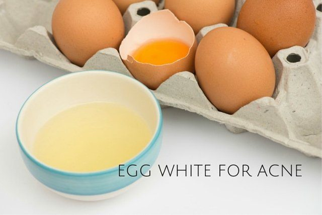 Best Home remedies to Treat Acne - Egg-White-For-Acne Face Pack