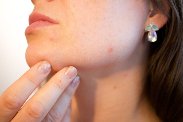 Surprising Uses of Tea Tree Oil - Acne Treatment