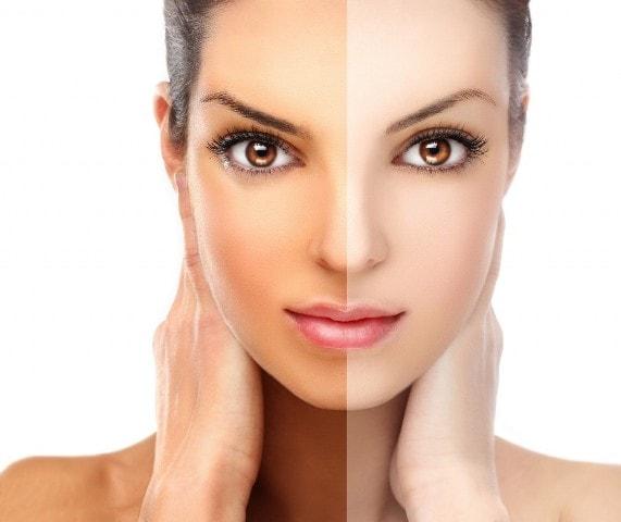 Uses of Bio Oil- Improves Skin tone