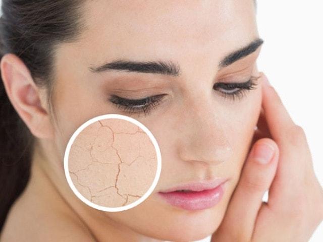 Uses of Bio Oil- Treats Dry Skin