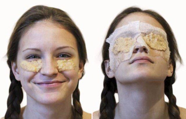 Top 10 Instagram Hacks that actually works - Potatoes for Dark Circles