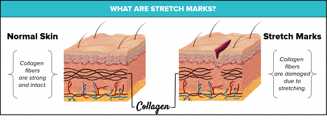 what-are-stretch-marks